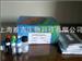 人白介素2可溶性受体β链(IL-2sRβ )Elisa试剂盒